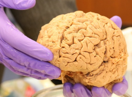 How is Quizzify like the human brain?