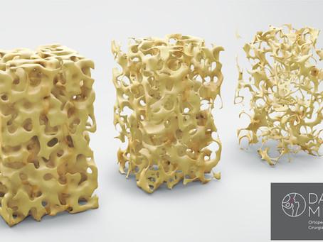Osteoporose: sinais de risco