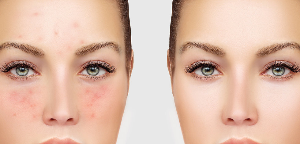 skin-care-natural-aesthetics-acne.jpg