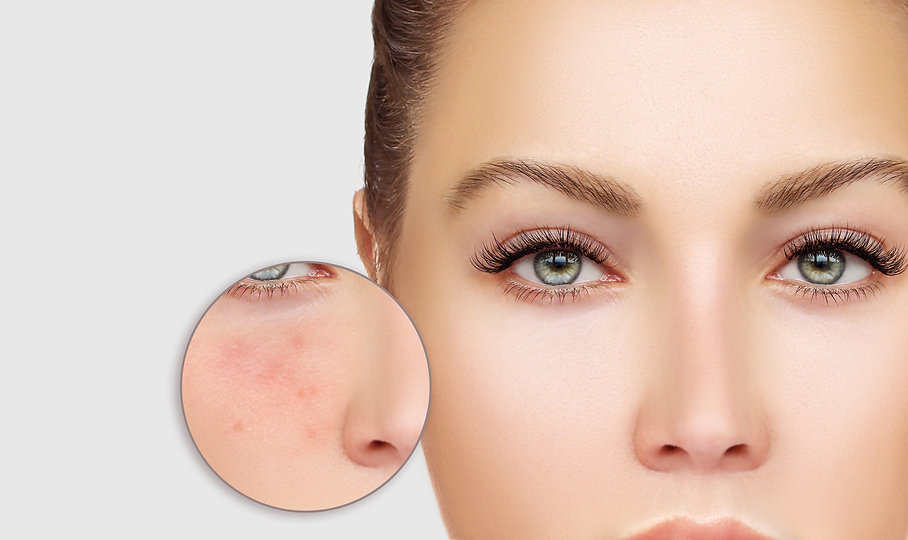 acne-skin-care-aesthetics-medical.jpg