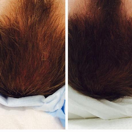 PRP Hair restoration.jpg