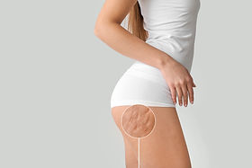 Young woman with cellulite problem on li