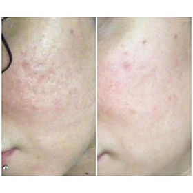 Acne scarring! Do you have it_ _This is