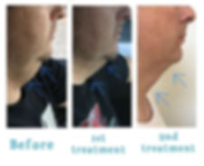 This treatment is changing lives!!!!! Pr