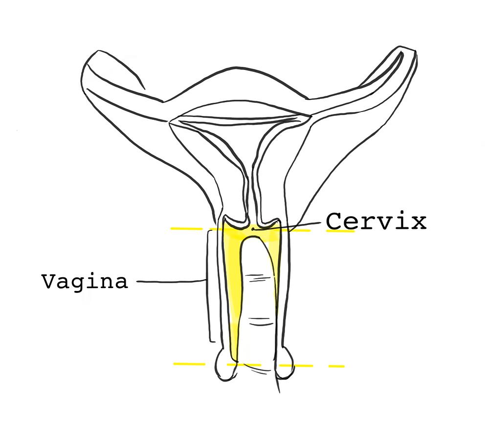 Cervix Height Measurement