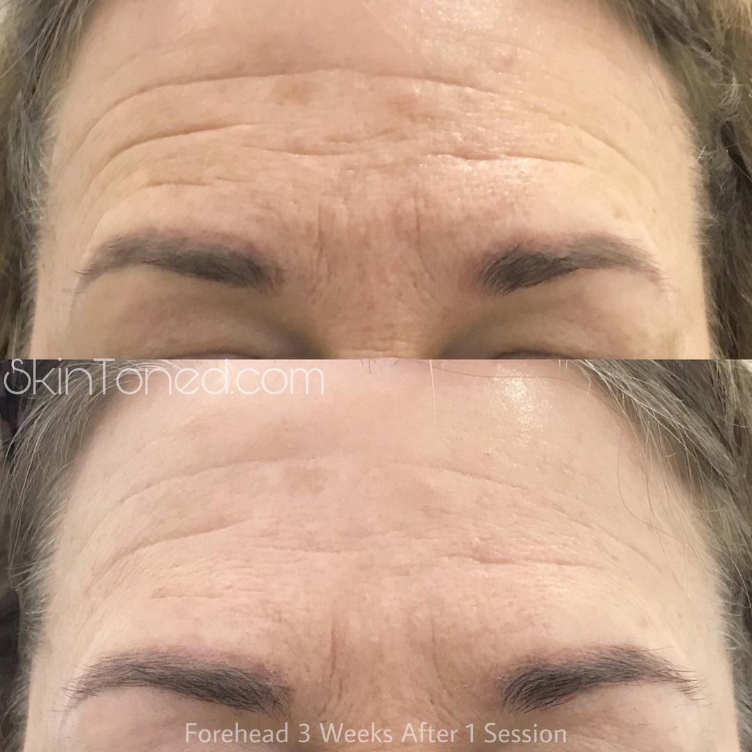 forehead1.JPEG