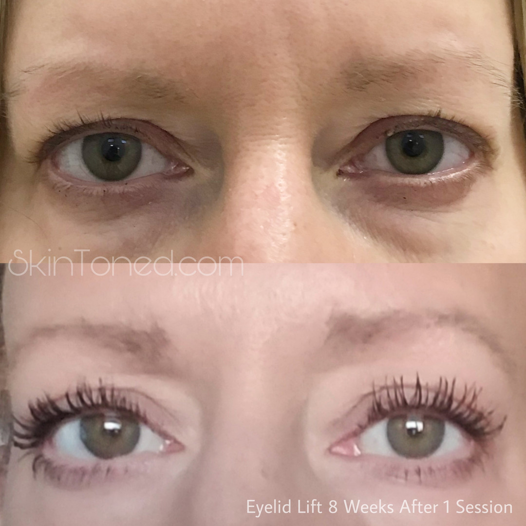 eyelid.JPEG