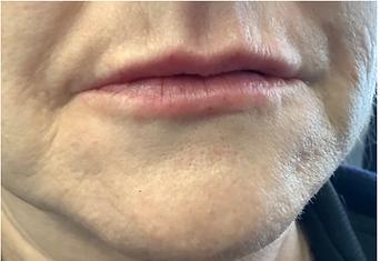 lip 4.PNG