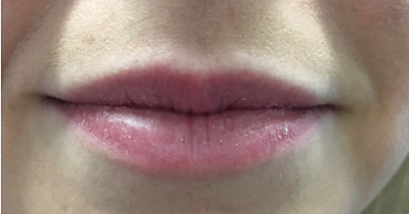 lips before.PNG