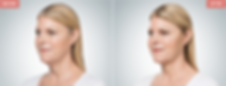 Renew Beauty Med Spa and Salon cosmetic injection Kybella