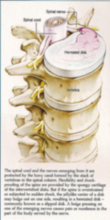 Spinal Cord with Nerve Extrusions