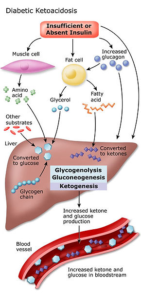 Keto-Acidosis.jpg