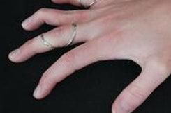 0814-52051    V Splint Finger Splint