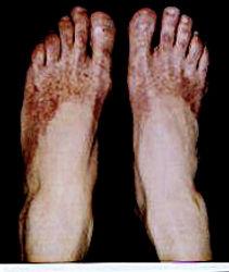 cryoglobulinemia vasculitis Dr. Diane Dike
