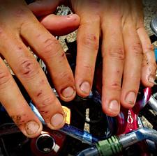 26_Mãos_destruídas_após_10_dias_de_árduo