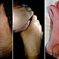 12_Pés_e_mãos_destruídos_após_16_dias_ex