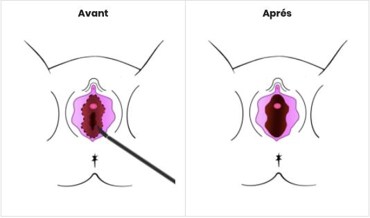 Douleur vulvaire | L'AVANCEE Centre gynécologique | Aix-en-Provence