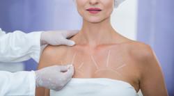 Chirurgie des tumeurs mammaires begnignes | L'AVANCEE Centre gynécologique | Aix-en-Provence