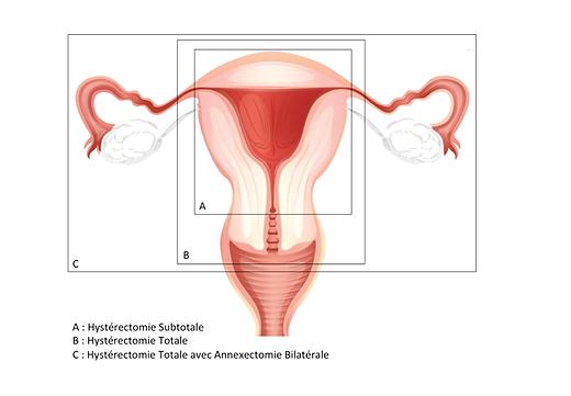 Hystérectomie | L'AVANCEE Centre gynécologique | Aix-en-Provence