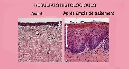 Laser gynécologique   L'AVANCEE Centre gynécologique   Aix-en-Provence