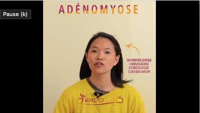 Nouvelle vidéo sur l'ADENOMYOSE réalisée par le Dr Christine Leveque, médecin à l'Avancée