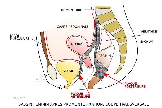 Promontofixation   L'AVANCEE Centre gynécologique   Aix-en-Provence