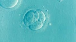 Endométriose et infertilité | L'AVANCEE Centre gynécologique | Aix-en-Provence