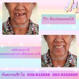 รีวิว ฟันปลอม.jpg
