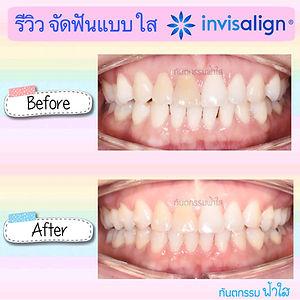 รีวิว จัดฟันแบบใส Invisalign ทำฟัน จัดฟัน ระยอง คลินิกทันตกรรมฟ้าใส