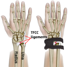 WristWidget TFCC image