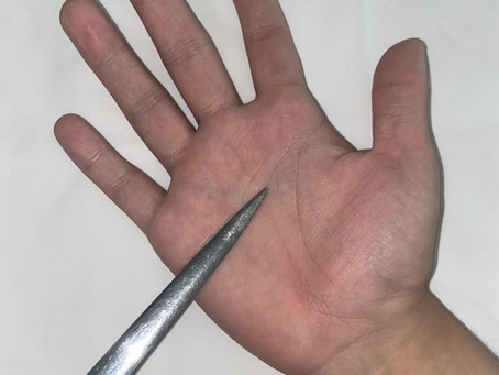 EVALUATION AND PRINCIPLES OF TREATMENT OF THE INJURED HAND