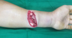 Evaluation of Acute Wounds in the Hand and Upper Extremity