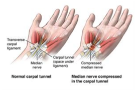 CARPAL TUNNEL SYNDROME & OTHER COMPRESSION NEUROPATHIES OF THE UPPER EXTREMITY