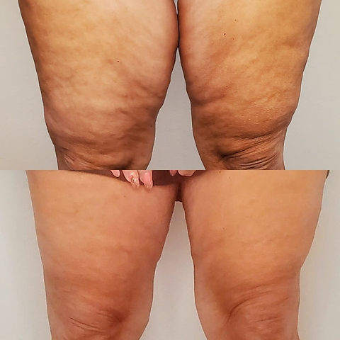 Cryo fat freezing before and after pic.j