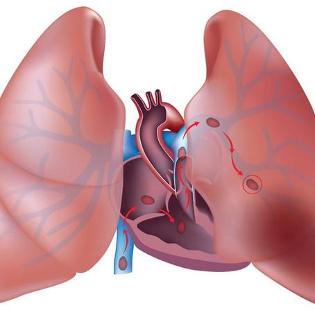 Embolia Pulmonar: quando coração e pulmão sofrem juntos