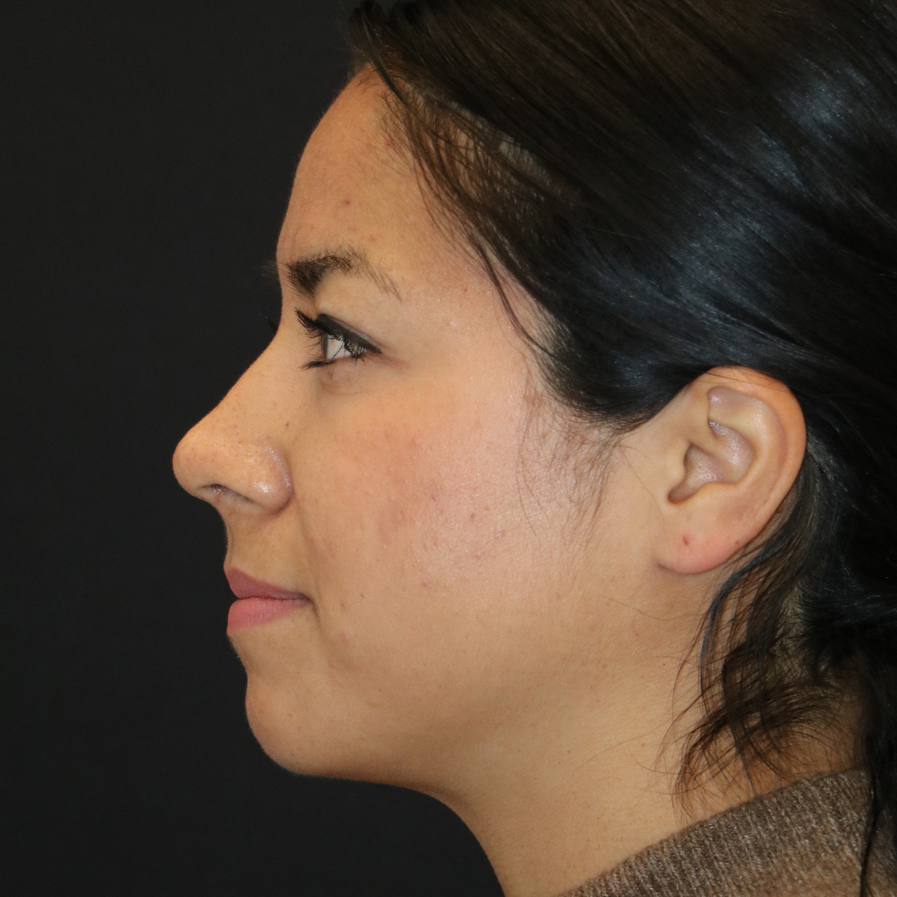 Seattle Rhinoplasty After nose job