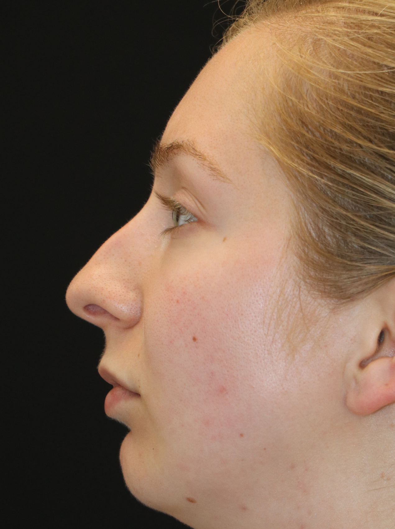 SEATTLE, WA - Rhinoplasty Expert this patient is a good candidate for non-surgical rhinoplasty