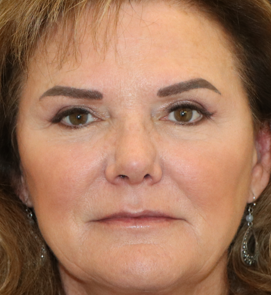 2 weeks after nasal valve repair surgery