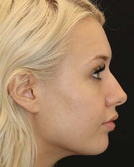 Seattle Rhinoplasty before surgery