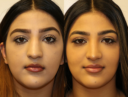 Before & After Rhinoplasty: 1-year after surgery.