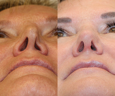 Nasal Valve Collapse Surgery - Before and After