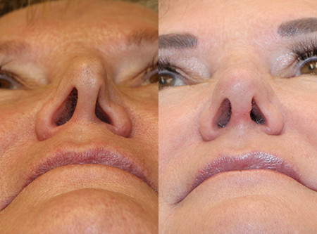"""Why do my nostrils close when I inhale with my nose?"" About Nasal Valve Collapse"