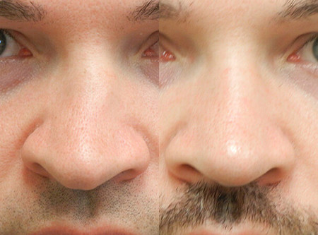 Seattle Rhinoplasty Before & After - Deviated Septum M01