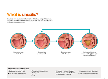 Why are my sinuses always so congested?
