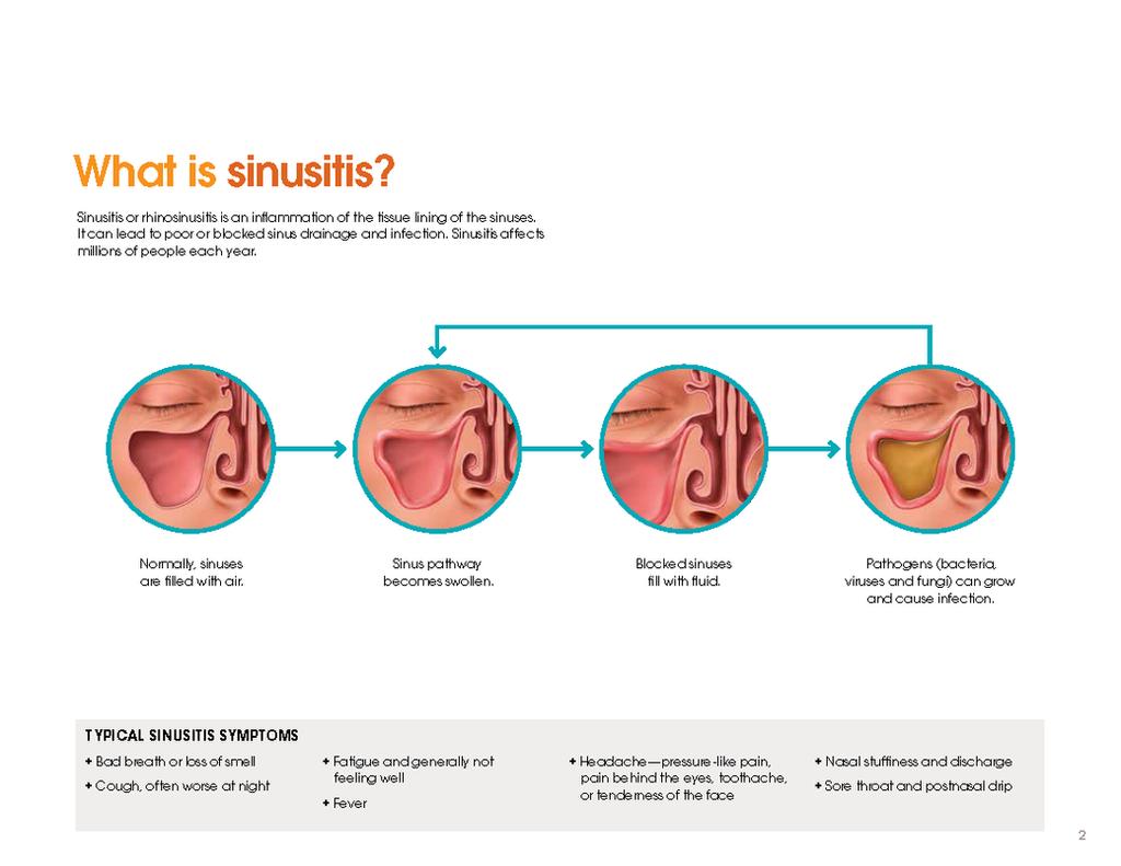 Blog   Nasal and Sinus Center of Seattle
