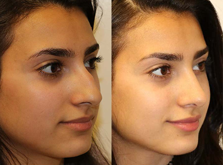 Rhinoplasty Before & After F13