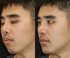This patient had a cosmetic rhinoplasty and chin implant surgery