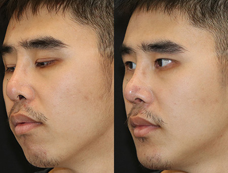 Seattle Revision Rhinoplasty & Chin Implant Surgery Before & After - M03
