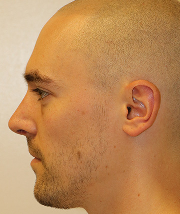 Seattle Rhinoplasty Nose Job