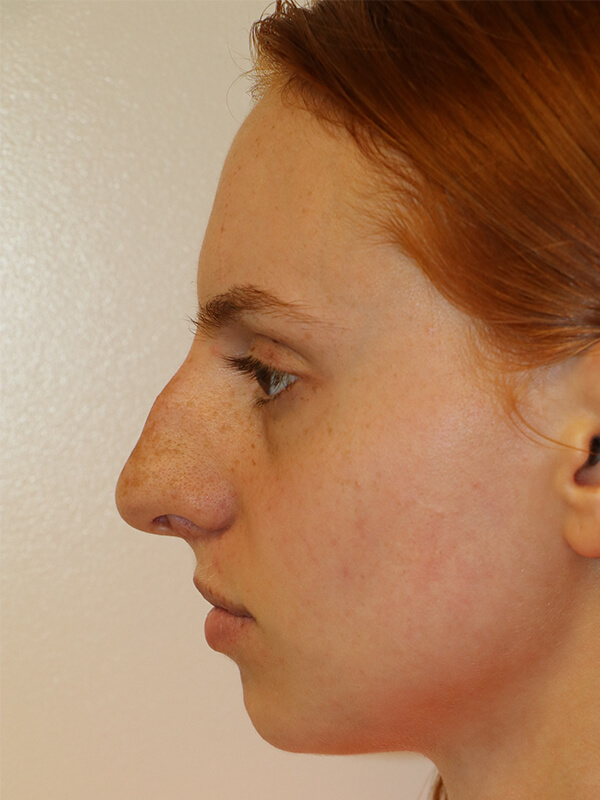 Seattle Rhinoplasty